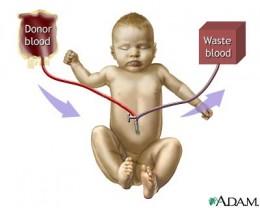 An Exchange Transfusion