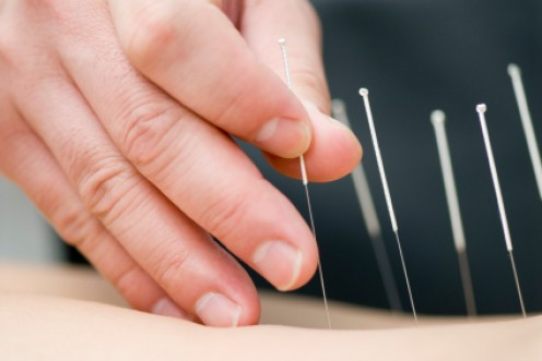 Use Acupuncture To Help You Lose Weight.