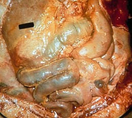 pancreatitis pancreas and gastrointestinal inflammatory agents Pancreatitis is inflammation of the pancreas, the large gland located behind the stomach pancreatitis can be acute, chronic, or recurrent acute pancreatitis is a sudden inflammation of the pancreas.