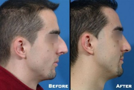 Nose reshaping is a popular male cosmetic surgery procedure.