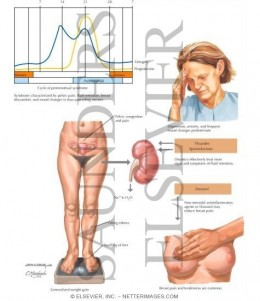 PREMENSTRUAL SYNDROME (PMS)or PMT (T means Tension)(Courtesy of http://www.netterimages.com/)