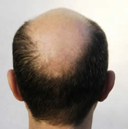 Thinning Hair, Hair Loss, Thinning Hair Treatment, Thinning Hair Infomation