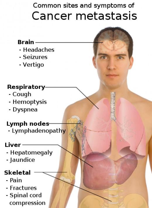 cardiac asthma symptoms