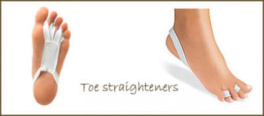 Hammer Toe Correction without Surgery - Bing images