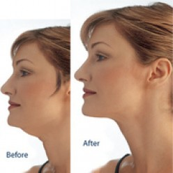 How To Eliminate and Get Rid of a Double Chin, Homemade Remedies, Wrap and Exercises for Chin and Jaw