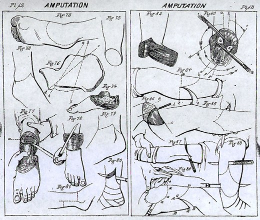 Amputation manual by by Samuel D. Gross