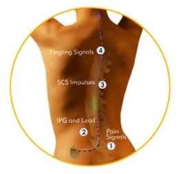 How spinal cord stimulator implant works?