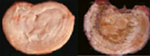 Normal disc Vs Degenerated disc