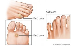 How To Deal With Foot Corns