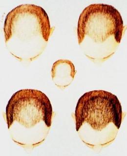 hair cloning bosley