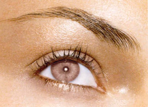 Wrinkle Reduction Under Eyes