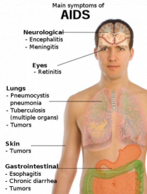 HIV Signs and Symptoms