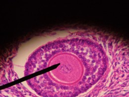 Primary Follicle