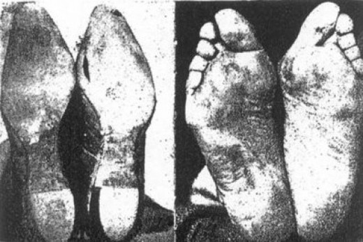 This is what our shoes do to our feet
