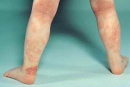 Baby Eczema on the Legs