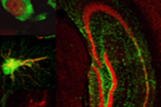 Brain - neural stem cells shown in green, neurons in red    Photo: University of California-Irvine
