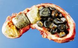 Gallstones in dissected gallbladder Attribution: Emmanuelm at en.wikipedia