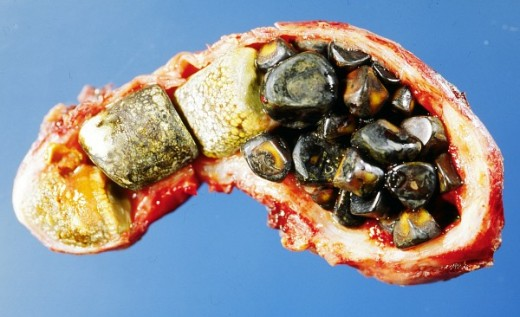 Gallstones in dissected gallbladder Attribution: Emmanuelm at en.wikipedia