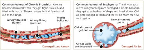 Lungs with COPD; Chronic Obstructive Pulmonary Disease