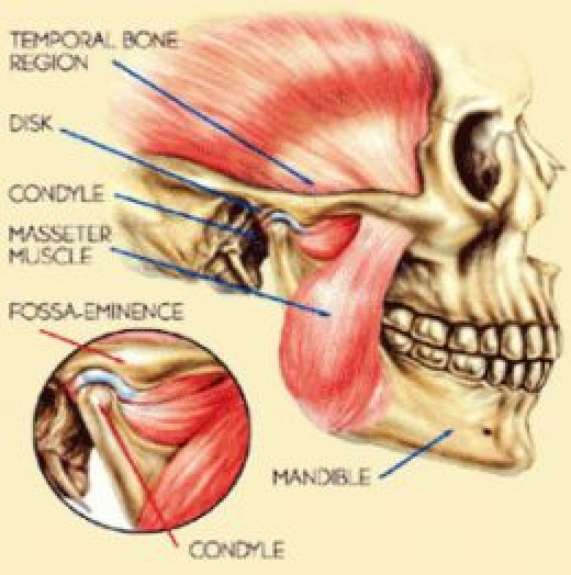 Do TMJ Exercises Work For Jaw Pain?