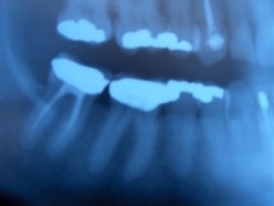 How Silver Fillings Can Disrupt Your Health