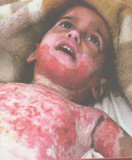 http://media.photobucket.com/image/war%20child/willowbreeze41/child_burns.jpg?o=2