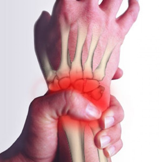 pain: pain in the wrist - carpal tunnel - hand pain, Skeleton