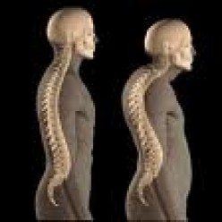 Osteoporosis: 'the brittle truth!'