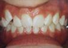 Preparing for Getting Braces on and What to Expect Getting