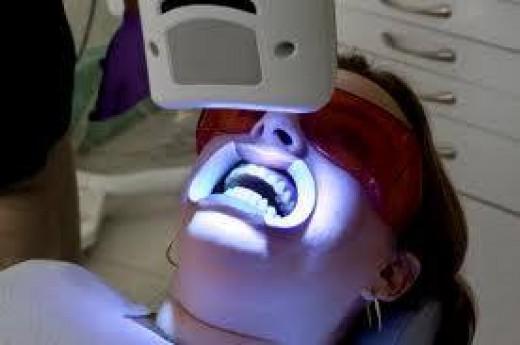 Teeth Whitening Laser