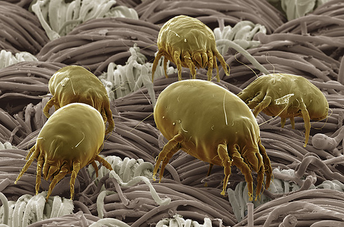 Dust mites - most common allergy Photo: Time Magazine, Ethan Hein