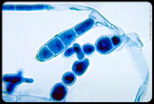 Photomicrograph of one of the fungi (Epidermophyton floccosum) that cause common ringworm.