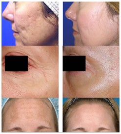 What To Do After Cosmetic Surgery....Post Op Instruction...Laser Skin Resurfacing