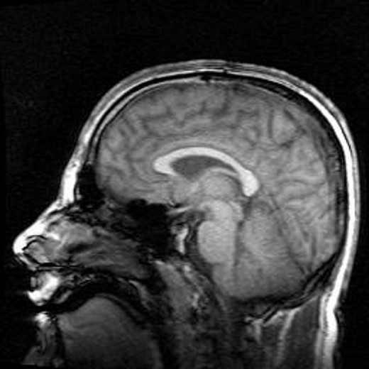 A side view of the human brain from an MRI