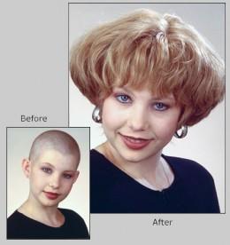 Rosemary oil treats alopecia pic