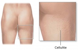 Cellulite treatments help reduce and eliminate the visible effects of cellulite.