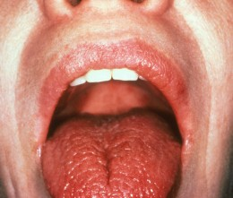 Dry mouth in autoimmune disorders and diabetes.
