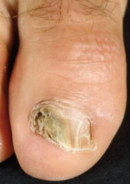 Don't let you nail infection get this bad.