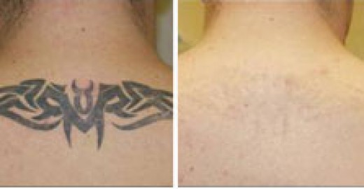Tattoo removal cream before and after photo. Wrecking Ball tattoo removal