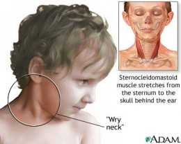 How Do I Know My Baby Has Torticollis?