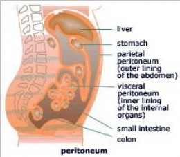 peritonial mesothelioma treatment