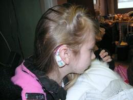 Behind The Ear (BTE) hearing aid.
