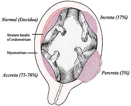 Placenta increta