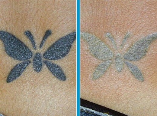 tattoo removal creams reviews how to remove tattoo tattoo design website