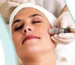 Diamond Microdermabrasion Procedure