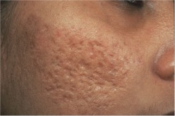 Two Types of Acne Scars Treatment