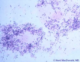 Bacteria Vaginosis as it looks under a microscope is one of the vaginal infections