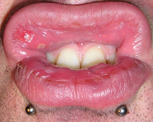 photos of mouth ulcers