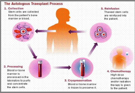 How Stem Cell Transplantation is done?
