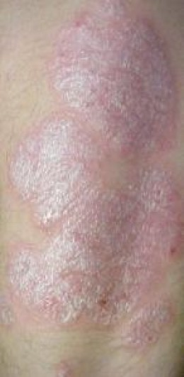 Signs and Symptoms of Psoriasis